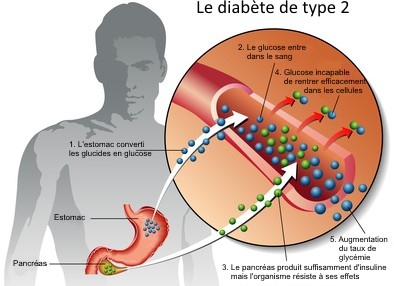schema-explication-diabete